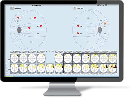 EyeSuite Software Update