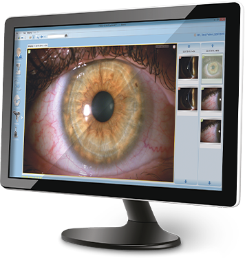 EyeSuite Monitor